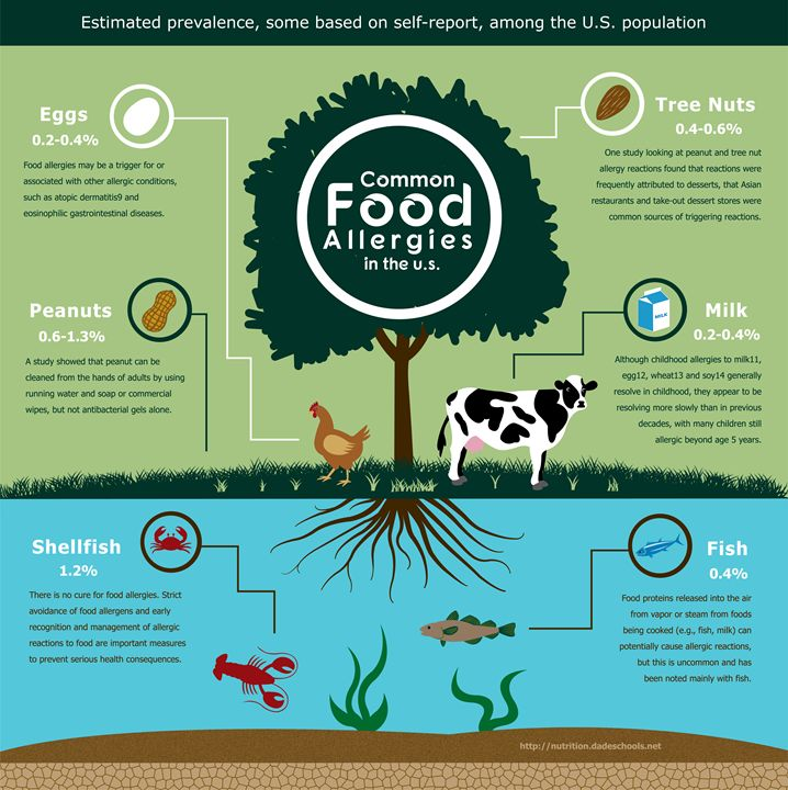 Food Allergies Infographic -  Chante.gaines