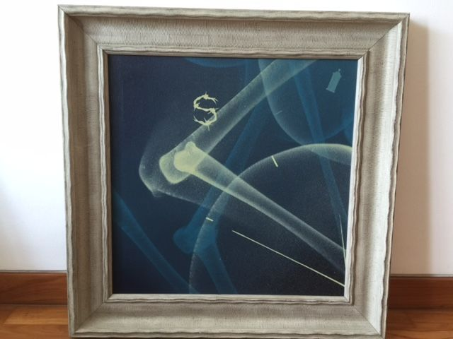 'Bones Blue' by SHOK-1 - Private Urban Art Collection
