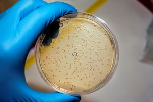 Biological lab a petri dish with aga - PhotoStock-Israel