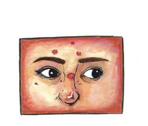 Dermatillomania Self Portrait