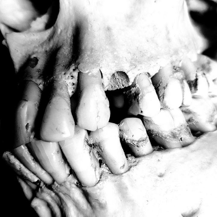 Black and white skull 3 - BambiBeen