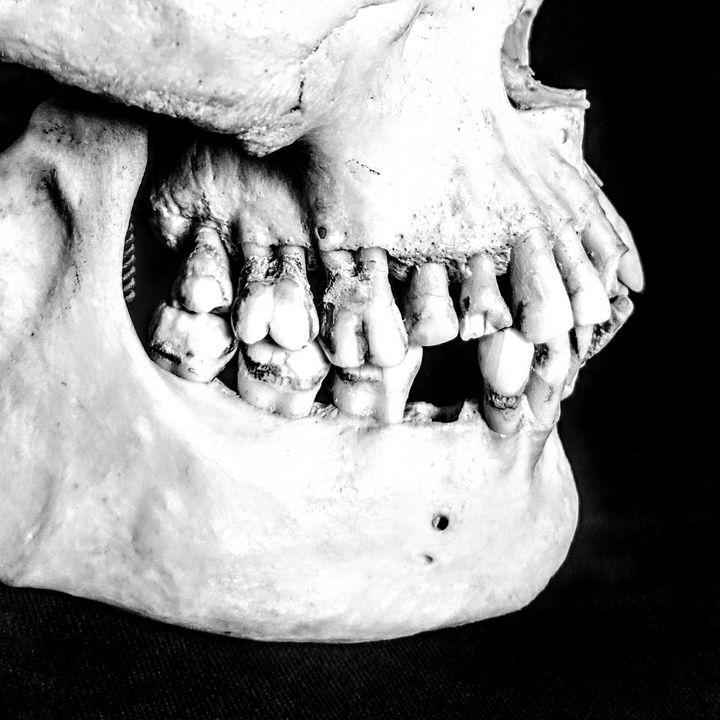 Skull 2 - BambiBeen