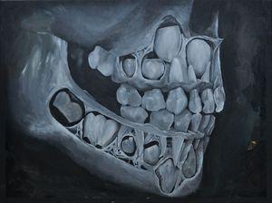 Milk Teeth 1