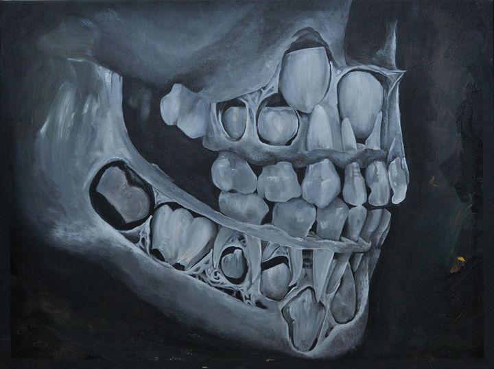 Milk Teeth 1 - Bachi Art