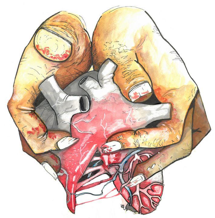 Tearing Heart - Vault Inc.