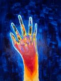 Acrylic painting of a hand