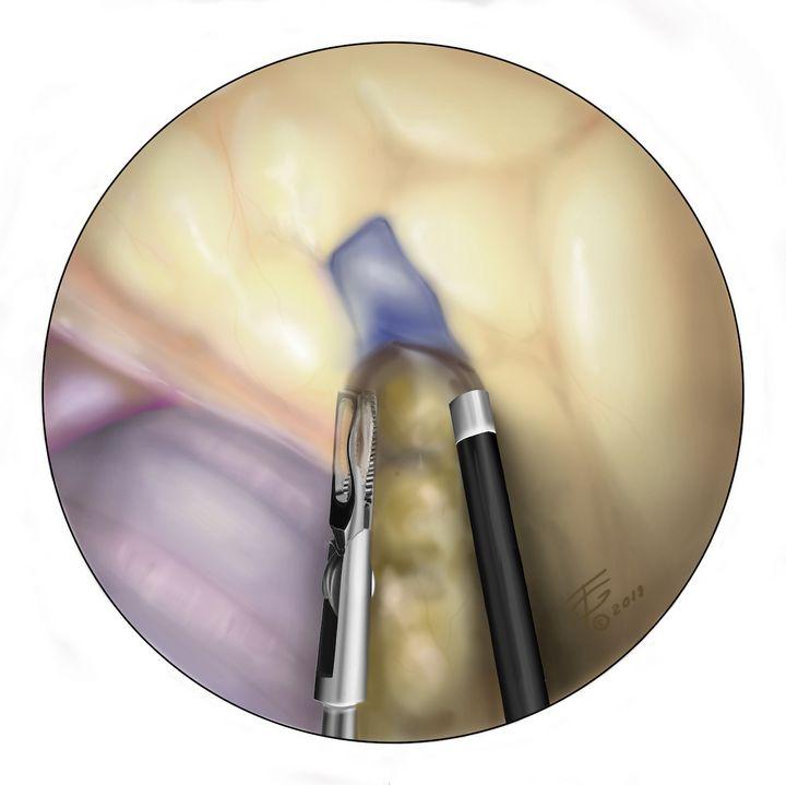 VAMLA - Thoracic Surgery - Georgiana Hopper