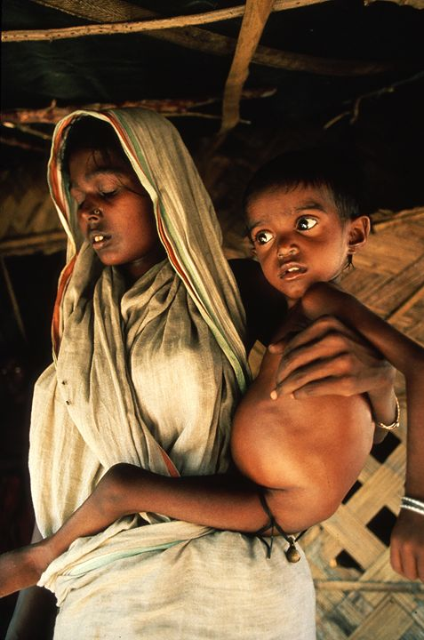 Face of Hunger in Bangladesh - Carl Purcell - Global Photography