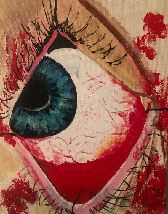 Eye surgery - Diamondfineartstudio