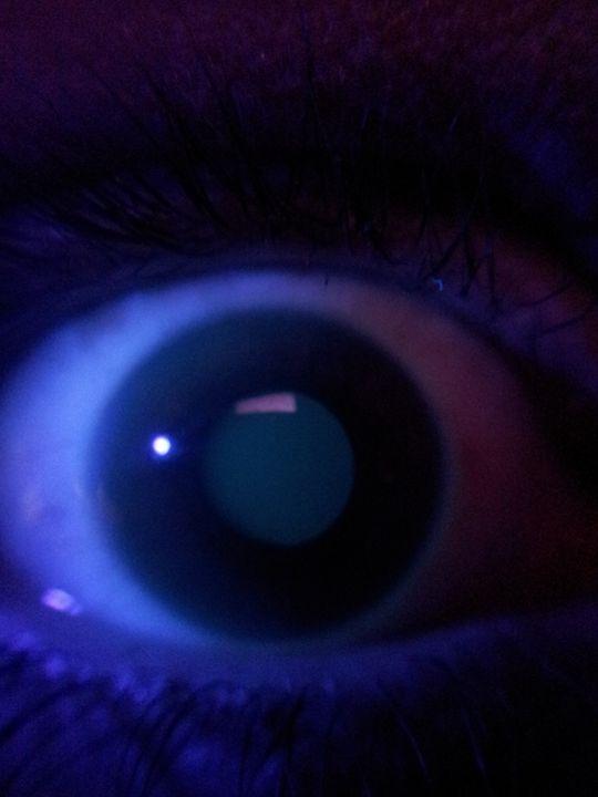 17,000 dandelions behind my left eye - Wounds become passageways, dark preludes