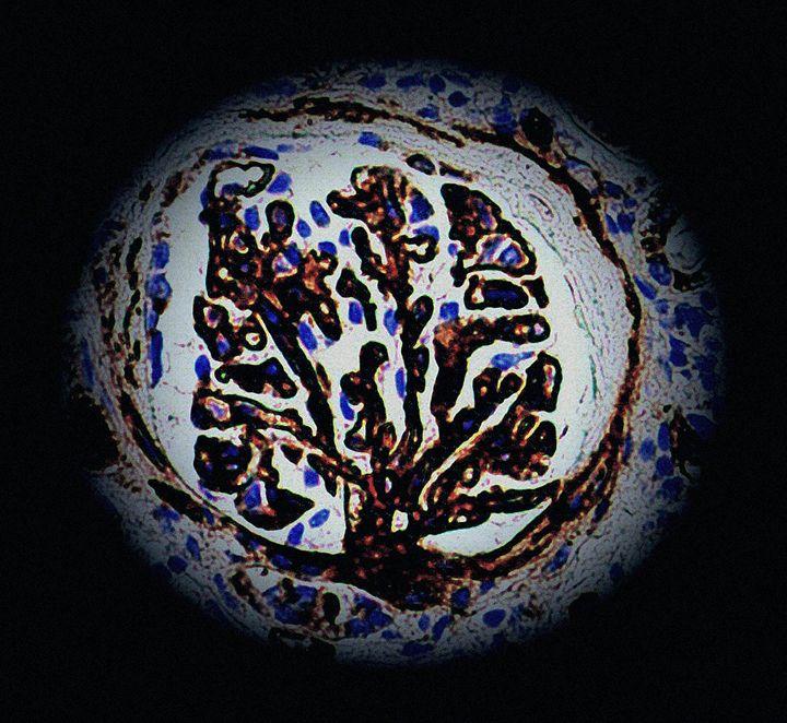 One Tree, One World - D.C. Burzo