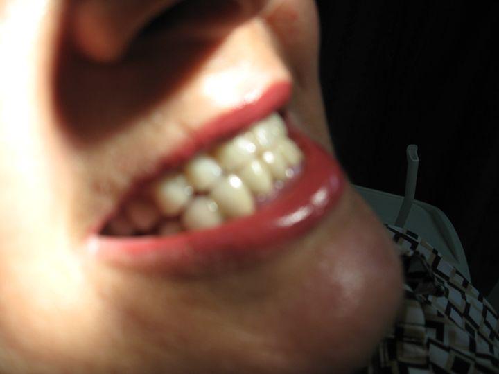 mouth - philipp