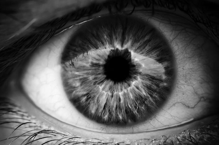 black and white eye - Randy Carcamo