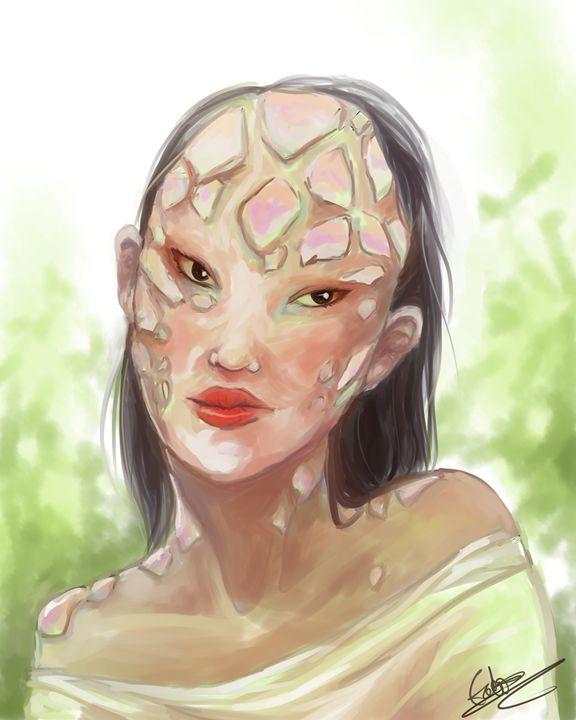 Harlequin Icthyosis - Ealish Swift