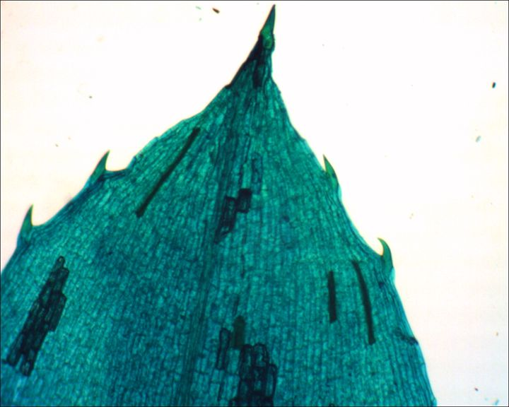 Hydrilla verticillata Leaf Tip - Calvin Franklin: Photomicrography