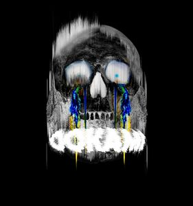 череп 1