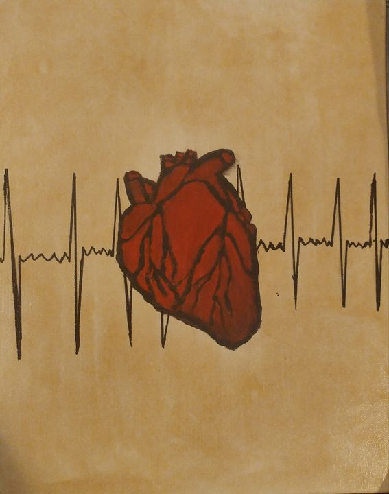 Afib Heart Beat - Nicholson Art Gallery
